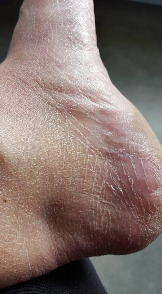 peeling voeten